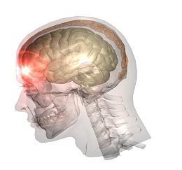 grand mal seizures brain injury