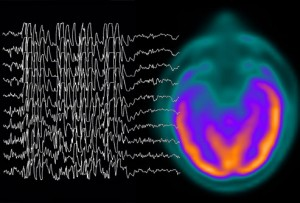 Brain Injury of All Sizes can Trigger Grand Mal Seizures erratic brain signals due to injury