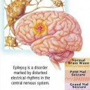 Can Anyone Suffering From A Seizures Disorder Have A Normal Life When Treated?