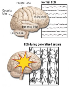 Grand Mal Seizure – Proper Medication At First Attack May Reduce The Chance of Second
