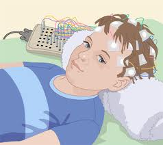 A Through Medical Check-Up Is Must Confirming a Petit Mal Seizure