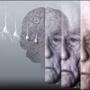 Having Alzheimer's Disease May Increase The Risk Of Seizure In Elderly