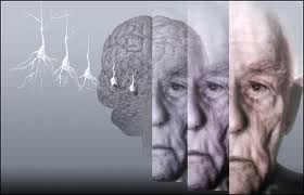 The Development Of Alzheimer's Disease Progresses Slowly