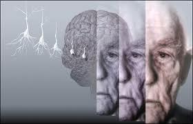 The Development Of Alzheimer's Disease Progresses Slowly