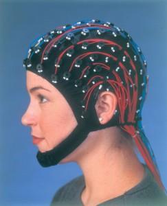 Grand Mal Seizures EEG