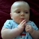 Infant Seizure Symptoms