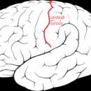 What Is Benign Rolandic Epilepsy?